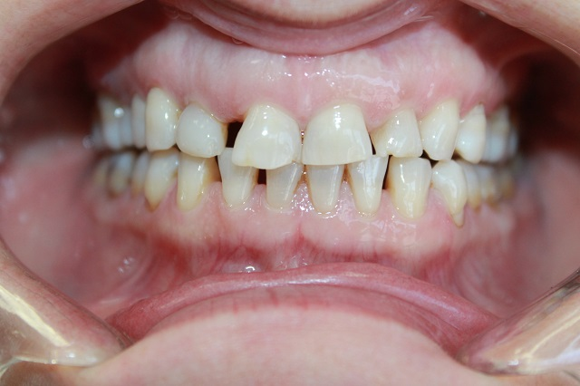 Dental Results before & after photo | DentalResults.ca
