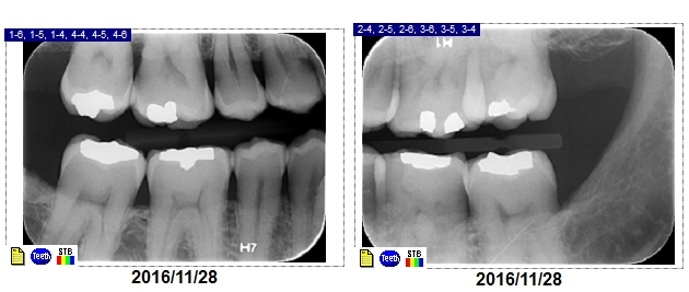 Dental Results before & after photo   DentalResults.ca